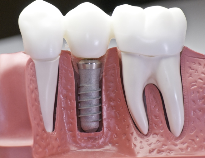 Seattle Dental Implants